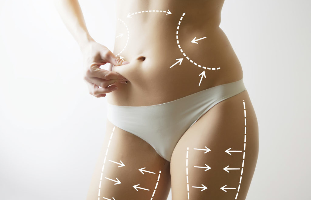 Lipoliza iniekcyjna – niechirurgiczna redukcja tkanki tłuszczowej